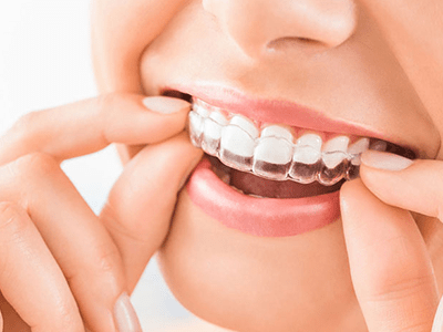Best INVISALIGN Solution Ahmedabad