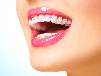 ORTHODONTIC-SOLUTIONS-Ahmedabad